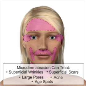 Microdermabrasion St. Catharines