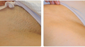 Permanent hair removal brazilian bikini waxing rself avi